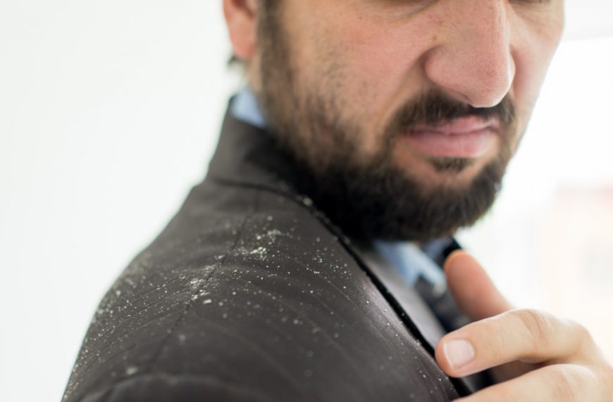 6 Myths About Dandruff and How to Debunk Them